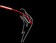 SARS-CoV2-Antigen-Schnelltest-Schritt2