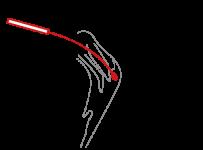 SARS-CoV2-Antigen-Schnelltest-Schritt3